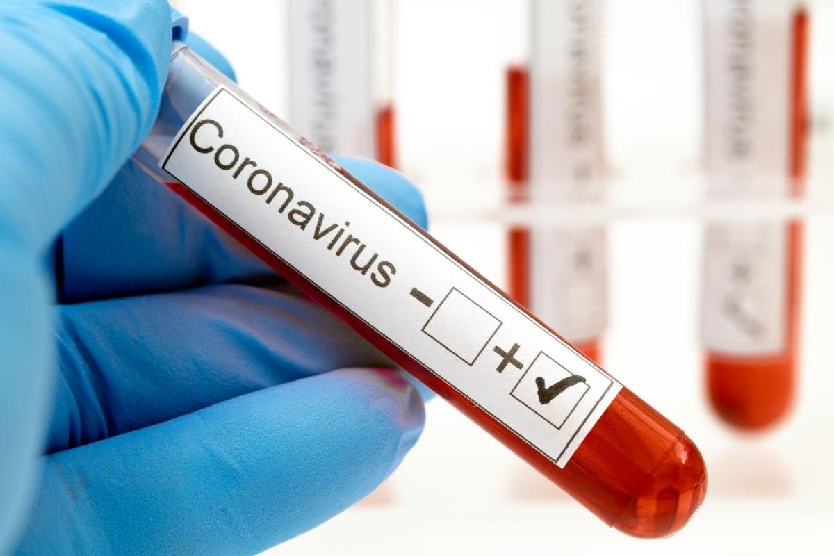 Coronavirus: 5 nuevos confirmados y hace un total de 18 casos en Berisso