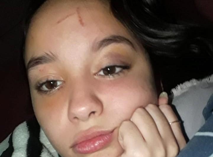 Durante la mañana de este lunes, Agustina, la chica que denunció ser golpeada por otra en el recreo de la Escuela Media 1, se hizo presente junto a su mamá Alejandra en el establecimiento para obtener respuestas al respecto.
