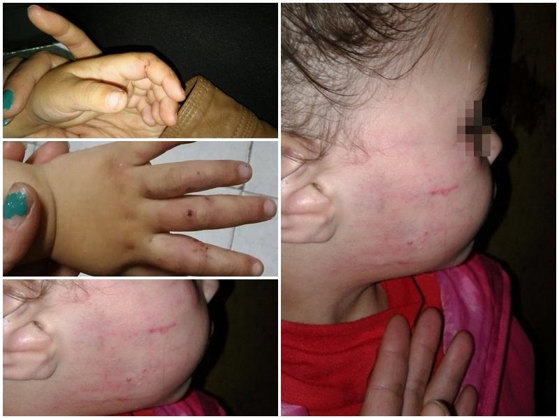 El pasado sábado, en el barrio El Carmen de Berisso, una nena de tres años fue salvajemente golpeada por su padrastro, Matías Rolando Álvez de 20 años, quien, para ocultar los moretones, la maquilló; la madre ya radicó la denuncia, pero la justicia solo ordenó la perimetral.