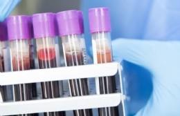 """Ramírez Borga informó """"una disminución notable de casos"""" de coronavirus en Berisso"""